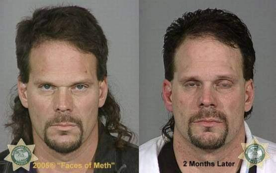 Faces-of-Meth-Before-and-After-Death_18