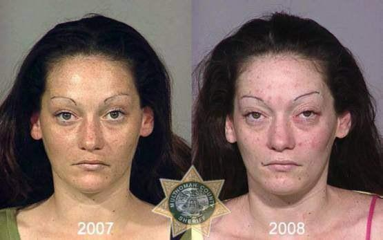 Faces-of-Meth-Before-and-After-Death_19