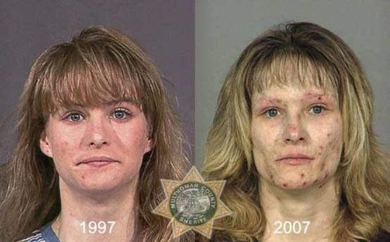 Faces-of-Meth-Before-and-After-Death_31