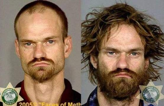 Faces-of-Meth-Before-and-After-Death_33