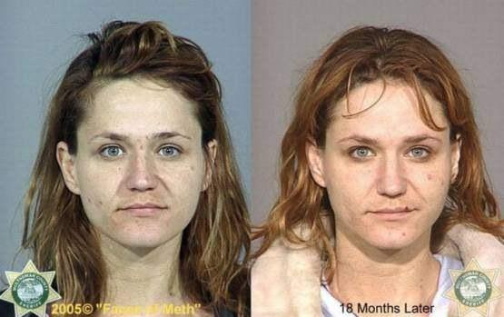 Faces-of-Meth-Before-and-After-Death_39