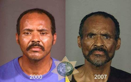Faces-of-Meth-Before-and-After-Death_42