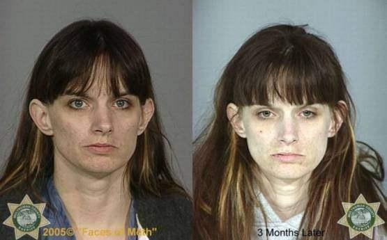 Faces-of-Meth-Before-and-After-Death_43
