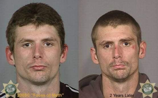 Faces-of-Meth-Before-and-After-Death_55