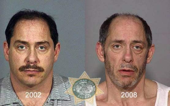 Faces-of-Meth-Before-and-After-Death_59