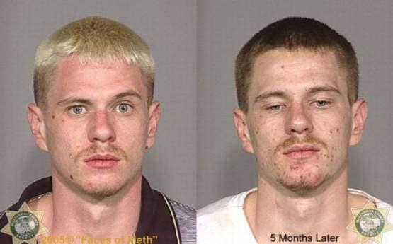 Faces-of-Meth-Before-and-After-Death_8