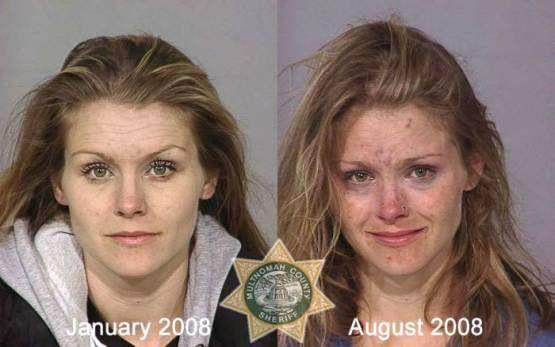 Faces-of-Meth-Before-and-After-Death_01
