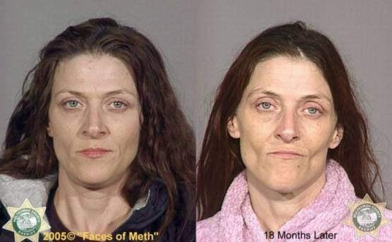 Faces-of-Meth-Before-and-After-Death_12