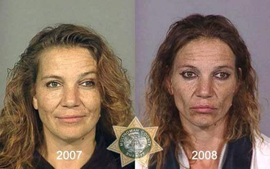 Faces-of-Meth-Before-and-After-Death_13