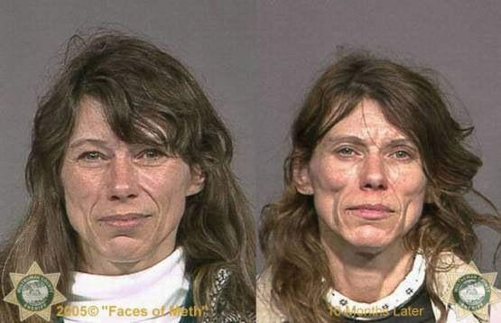 Faces-of-Meth-Before-and-After-Death_16