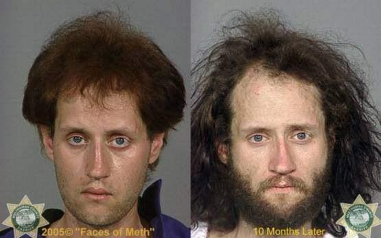 Faces-of-Meth-Before-and-After-Death_32