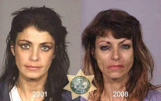 Faces-of-Meth-Before-and-After-Death_45