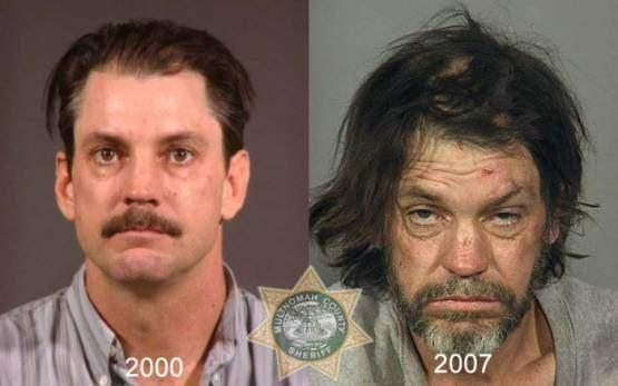 Faces-of-Meth-Before-and-After-Death_60