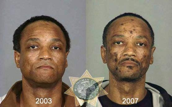 Faces-of-Meth-Before-and-After-Death_9