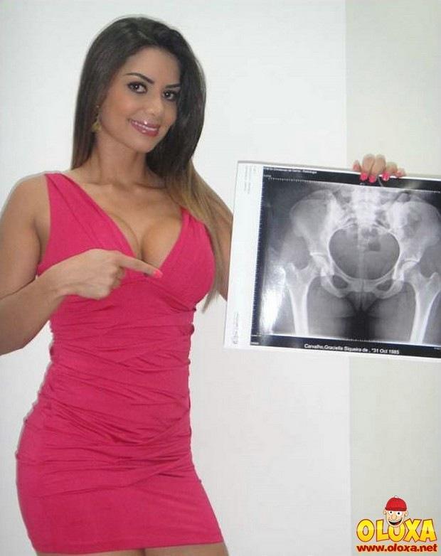 radiologista