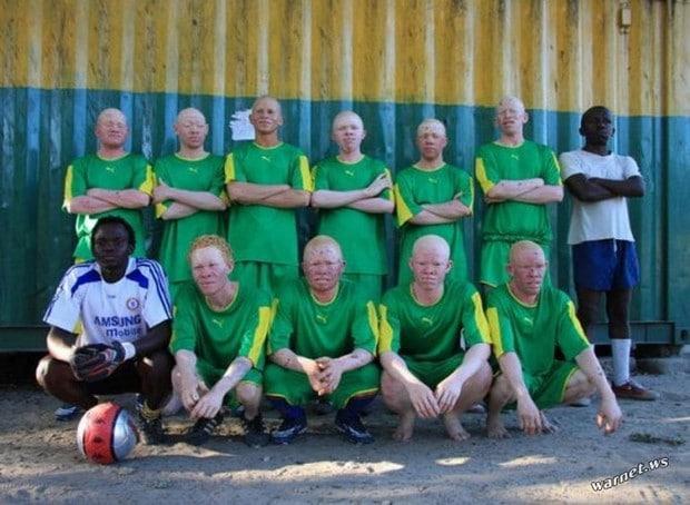 Clube de futebol albino 158