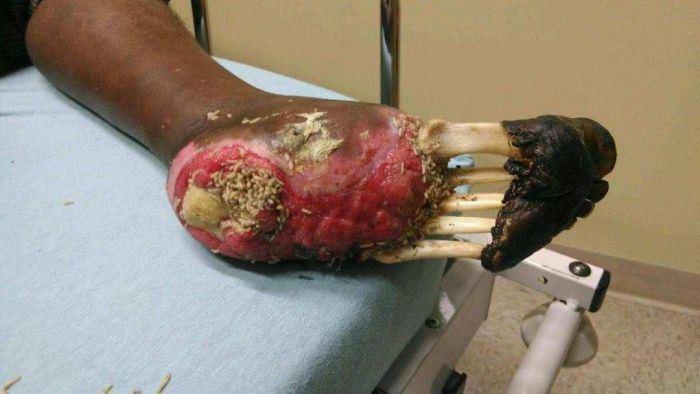 mendigo diabetico nao tirou o sapato por 10 anos inteiros 2
